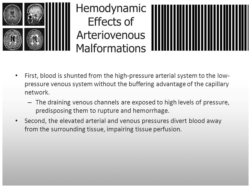 Hemodynamic Effects of Arteriovenous Malformations