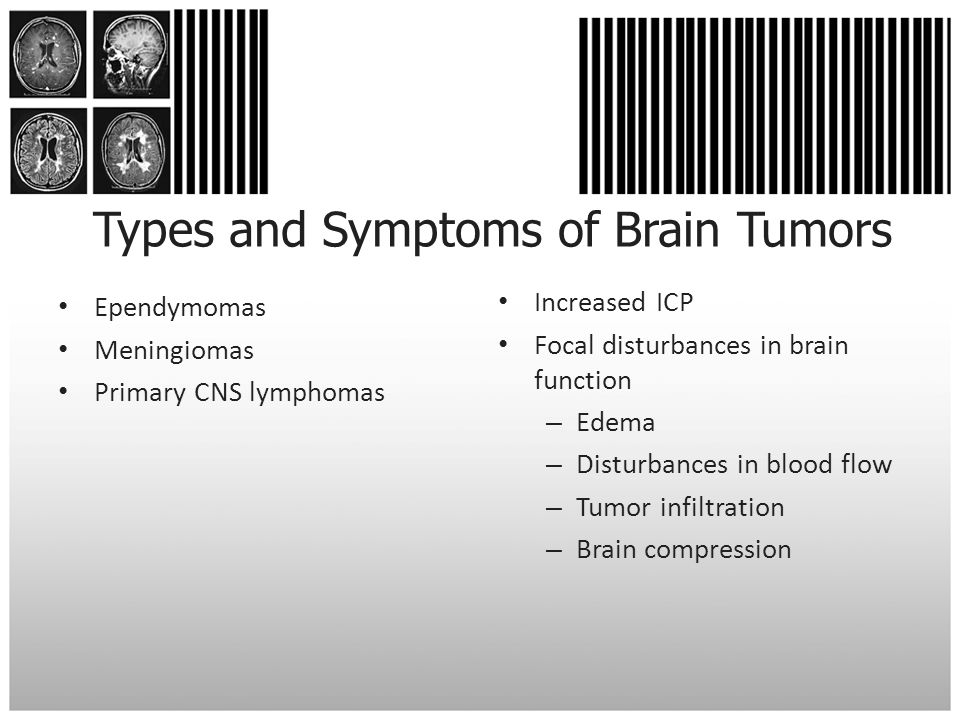 Types and Symptoms of Brain Tumors