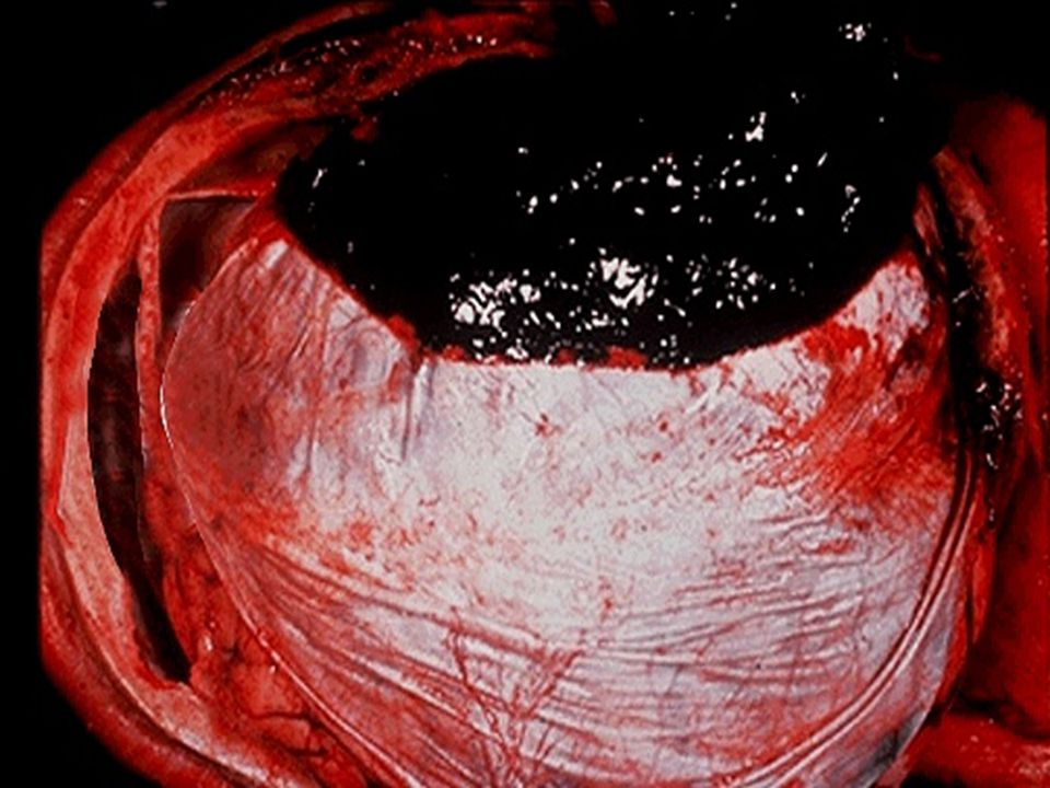 A blood clot is seen over the external surface of the dura