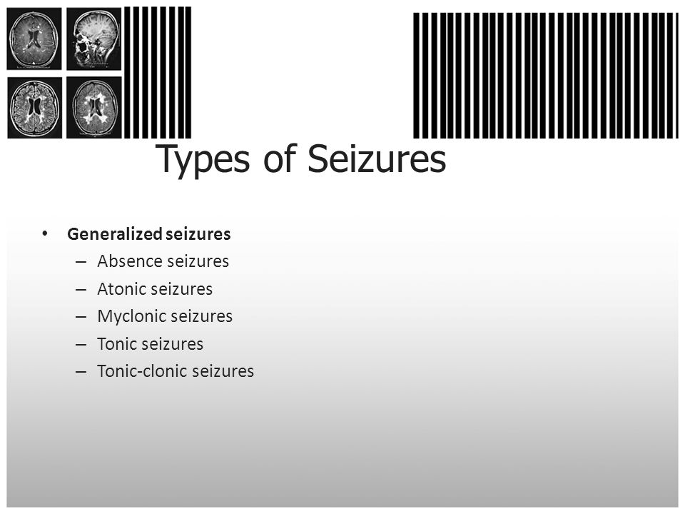 Types of Seizures Generalized seizures Absence seizures