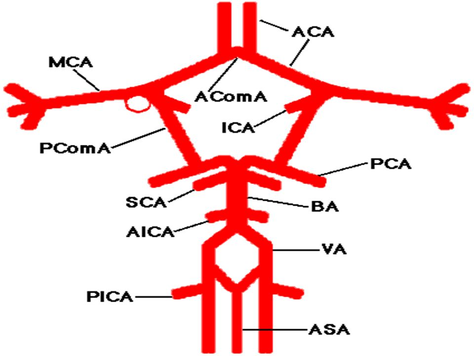 The cerebral arterial circulation at the base of the brain is diagrammed here.