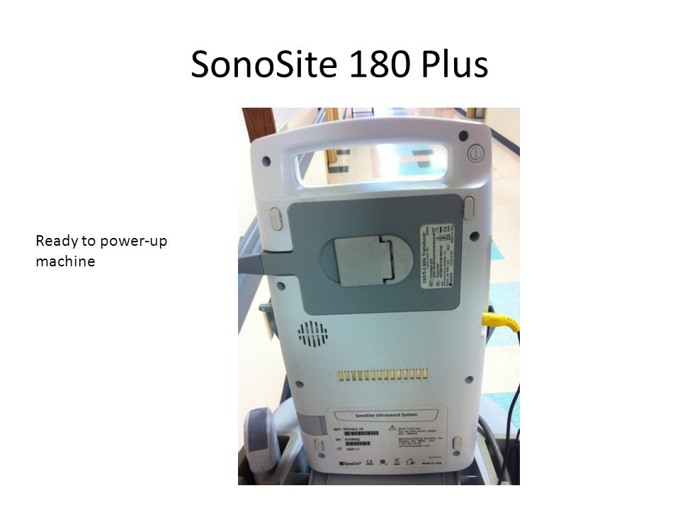 SonoSite 180 Plus Ready to power-up machine