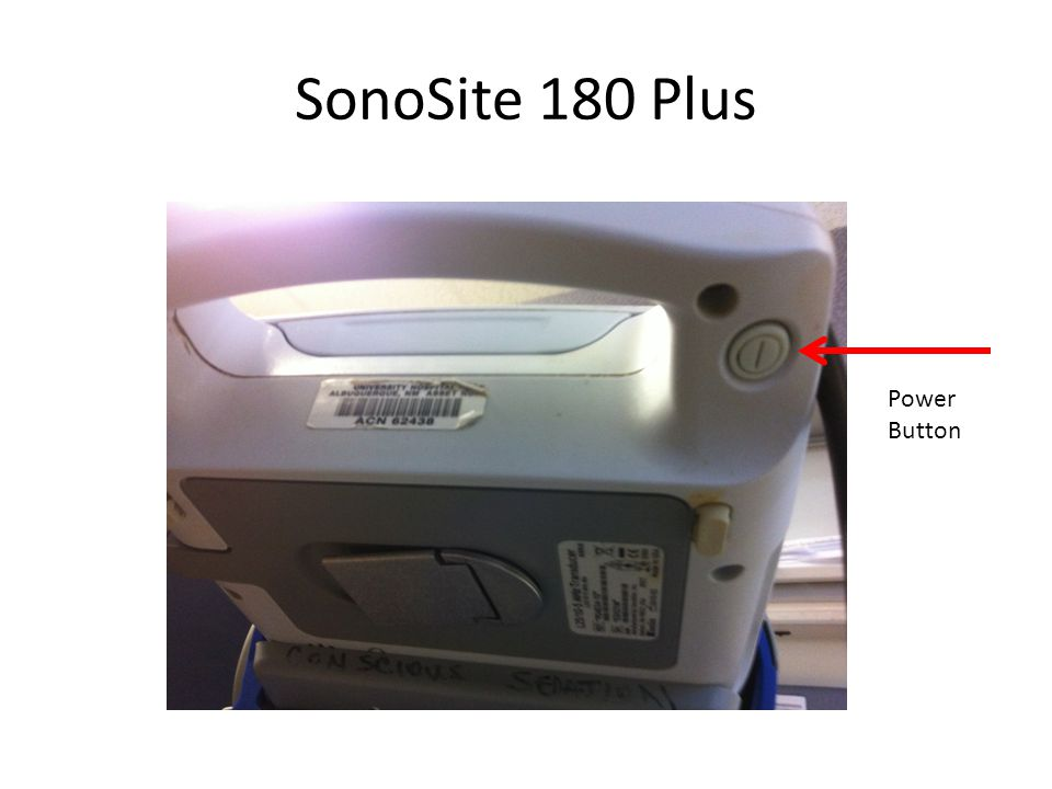 SonoSite 180 Plus Power Button