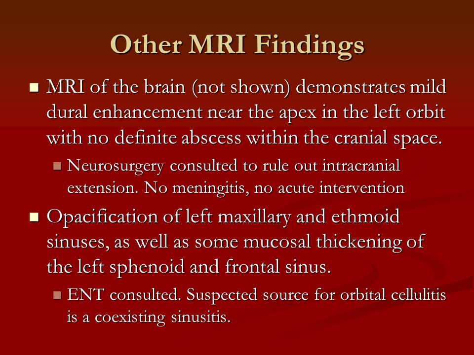 Other MRI Findings