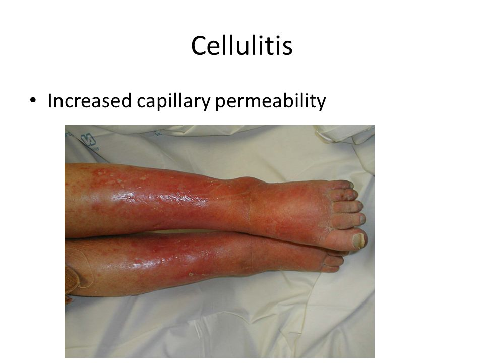 Cellulitis Increased capillary permeability