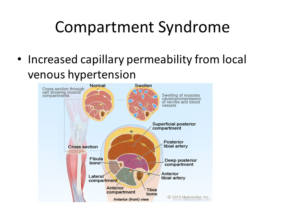 Compartment Syndrome Increased capillary permeability from local venous hypertension