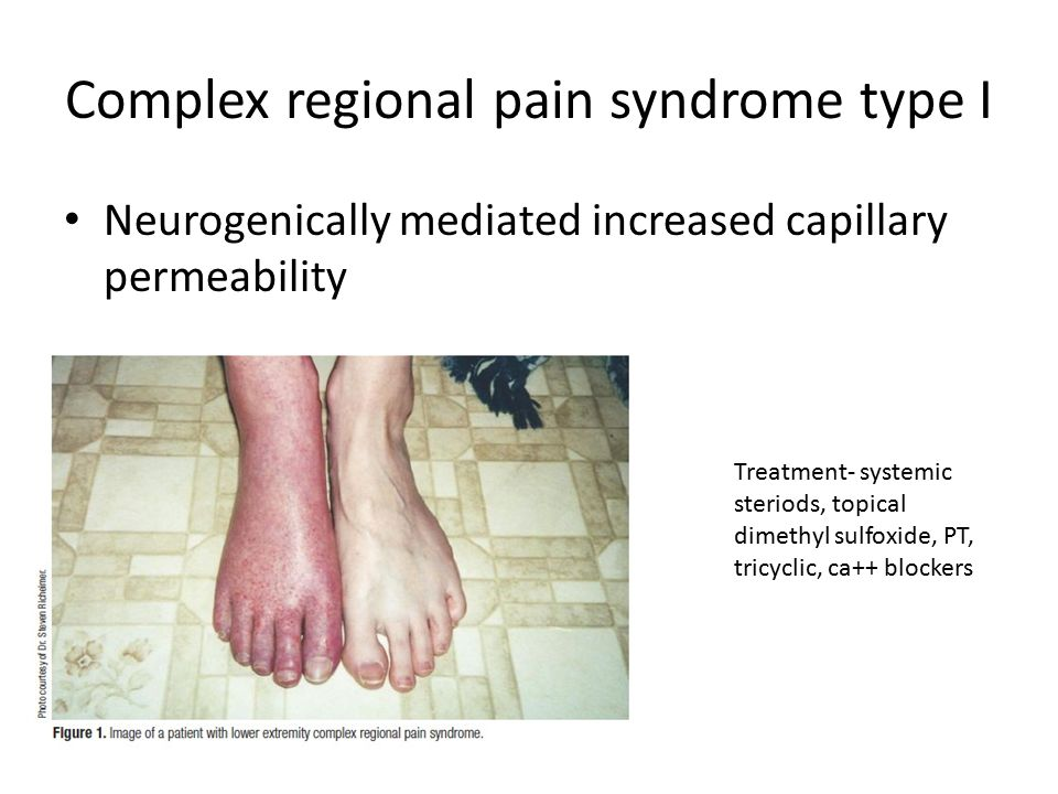 Complex regional pain syndrome type I