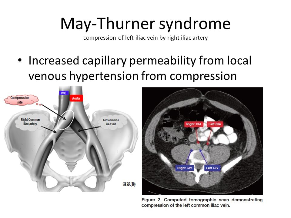 May-Thurner syndrome compression of left iliac vein by right iliac artery