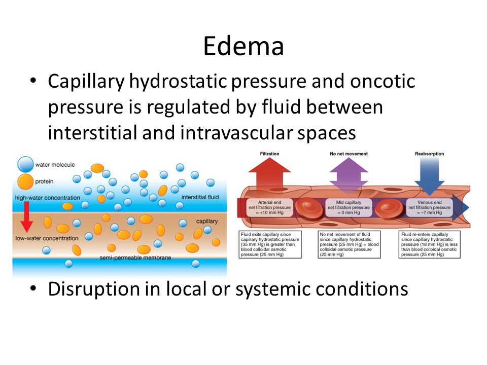 Edema Capillary hydrostatic pressure and oncotic pressure is regulated by fluid between interstitial and intravascular spaces.