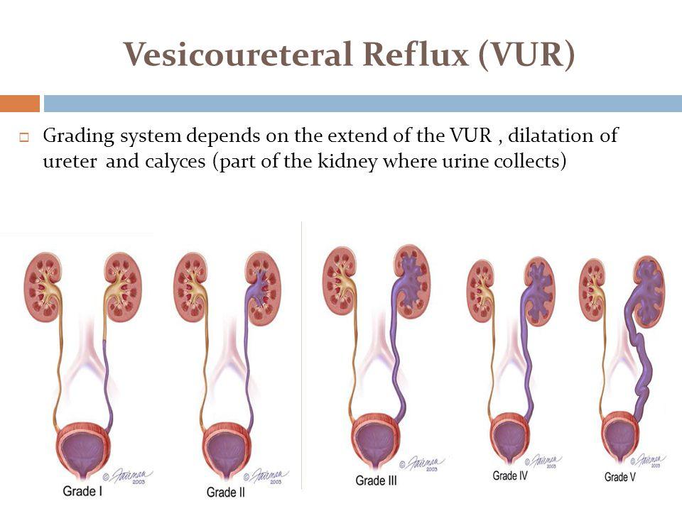 Vesicoureteral Reflux (VUR)