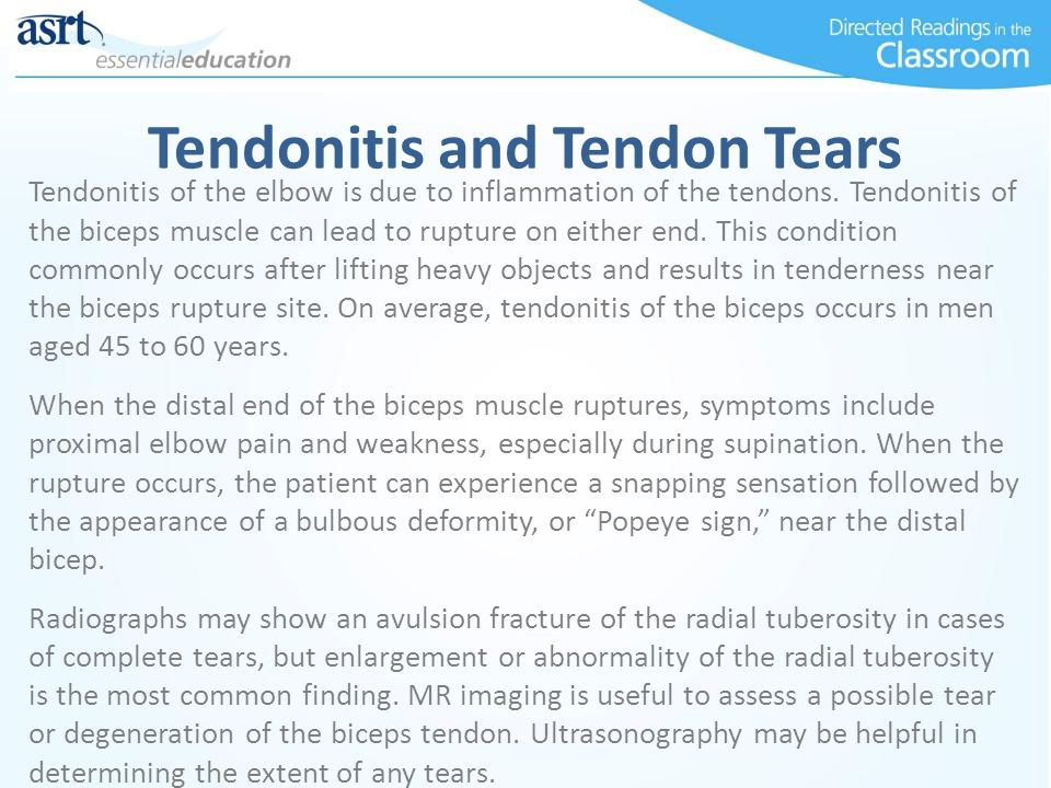 Tendonitis and Tendon Tears