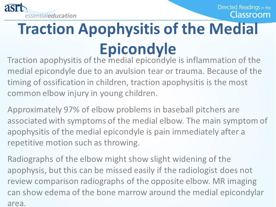 Traction Apophysitis of the Medial Epicondyle