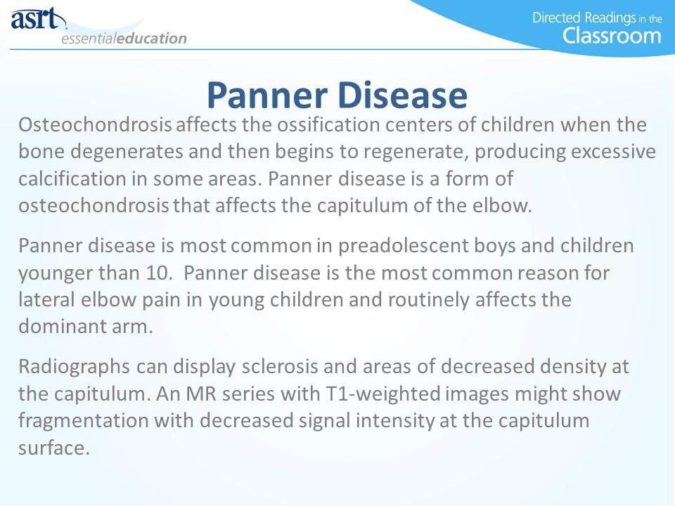 Panner Disease