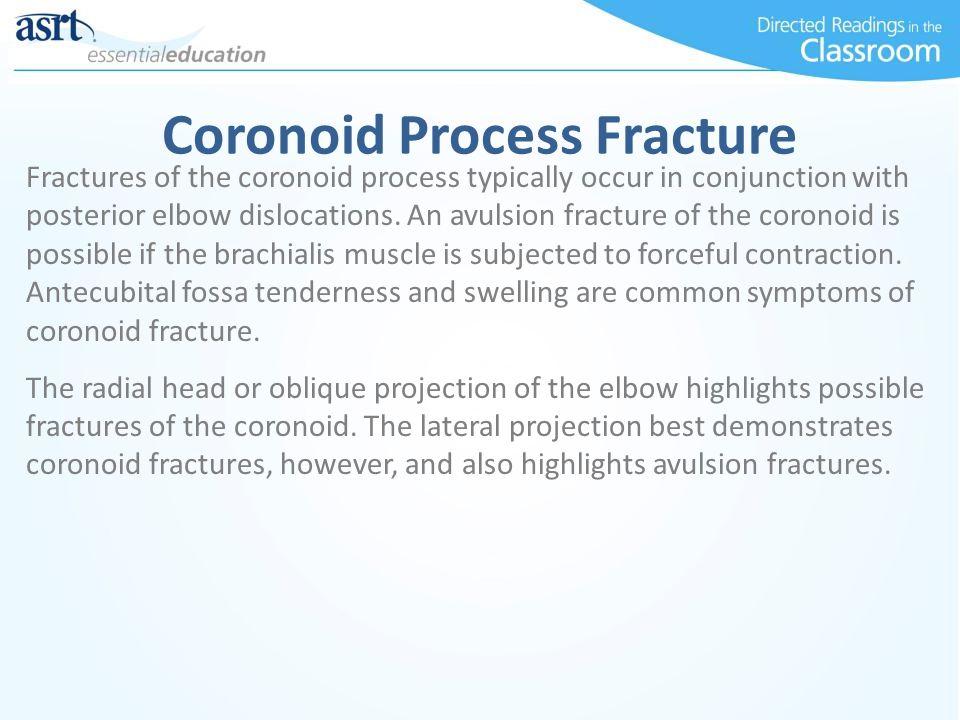 Coronoid Process Fracture