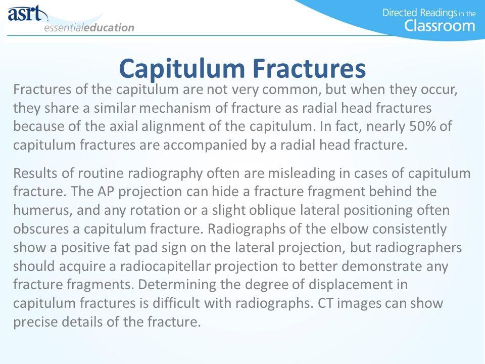 Capitulum Fractures