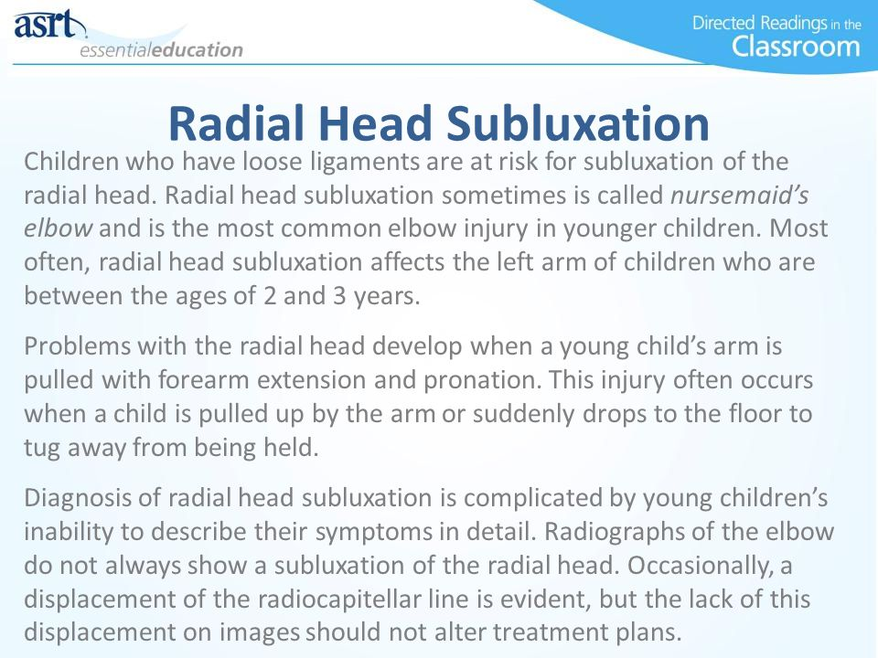 Radial Head Subluxation