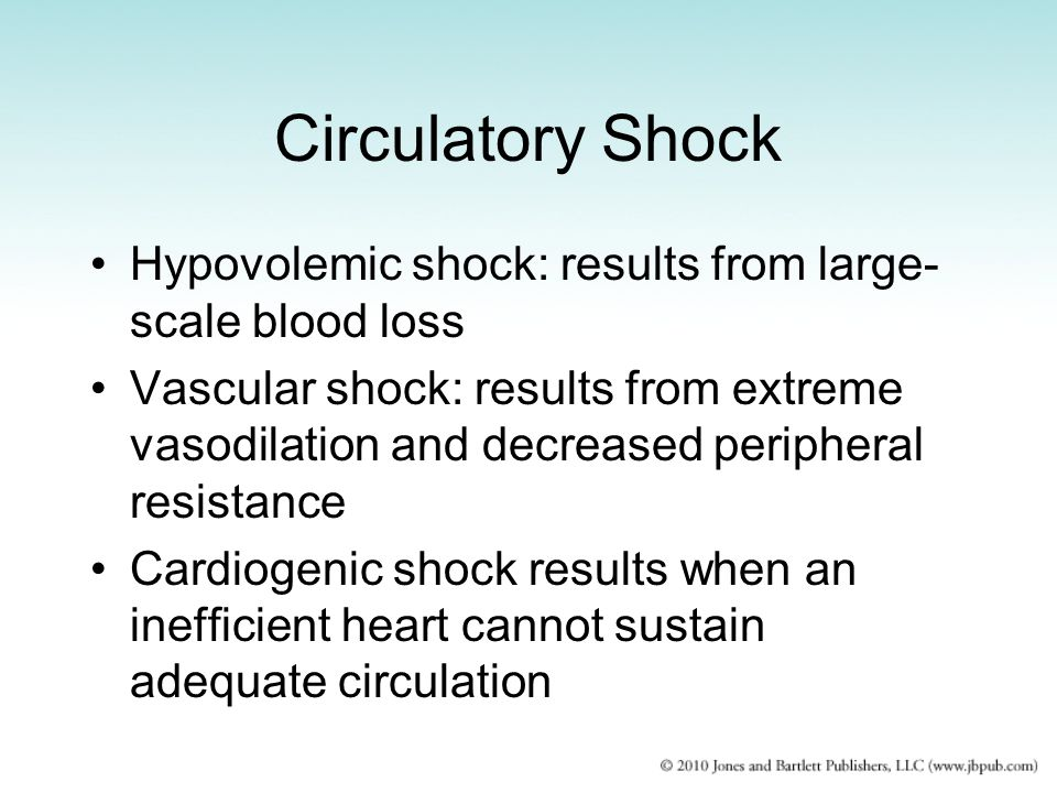Circulatory Shock Hypovolemic shock: results from large-scale blood loss.