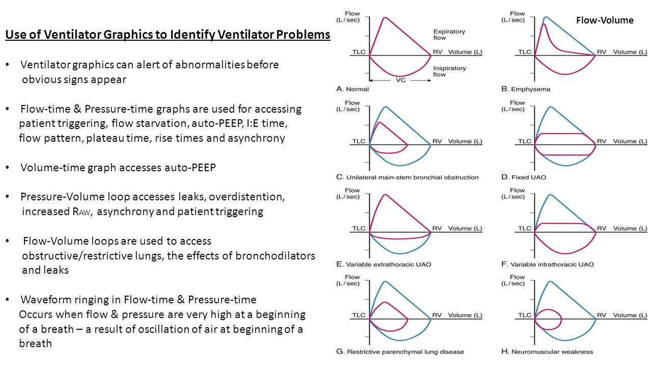 Use of Ventilator Graphics to Identify Ventilator Problems