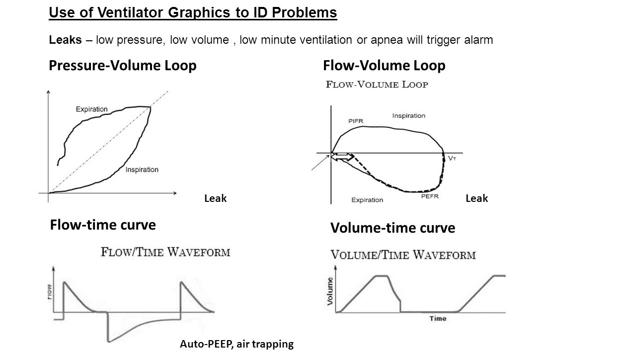 Pressure-Volume Loop Flow-Volume Loop Flow-time curve