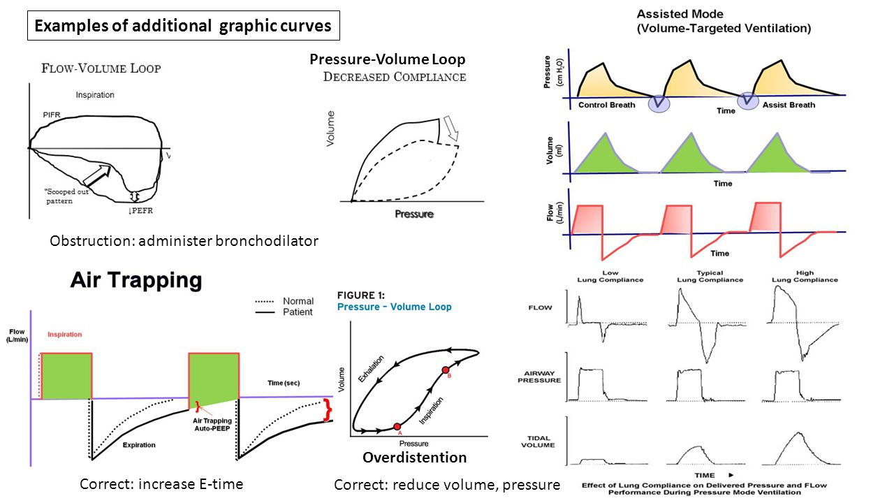 Examples of additional graphic curves