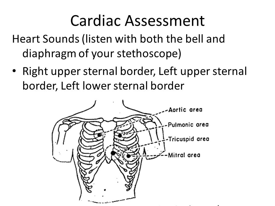 Cardiac Assessment Heart Sounds (listen with both the bell and diaphragm of your stethoscope)