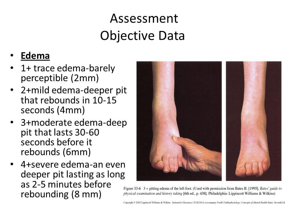 Assessment Objective Data