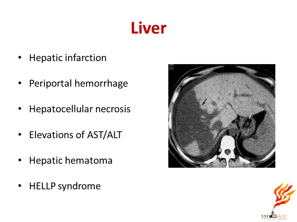 Liver Hepatic infarction Periportal hemorrhage Hepatocellular necrosis