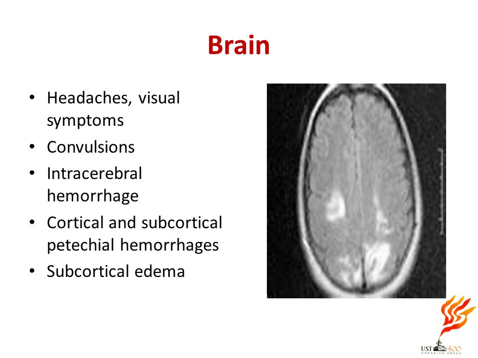 Brain Headaches, visual symptoms Convulsions Intracerebral hemorrhage