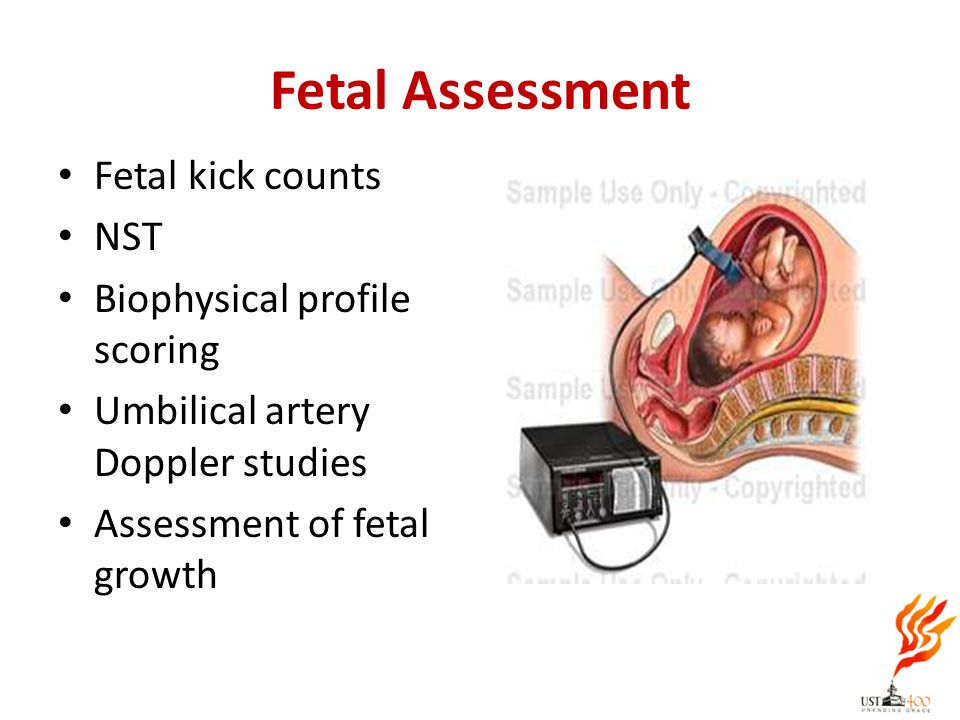Fetal Assessment Fetal kick counts NST Biophysical profile scoring