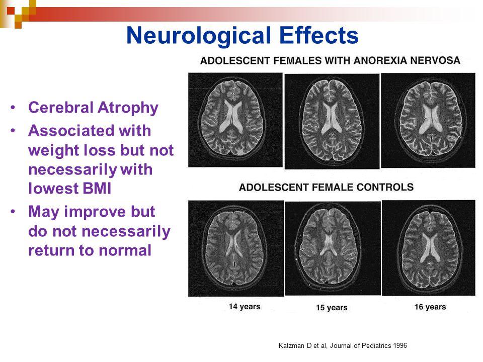 Neurological Effects Cerebral Atrophy