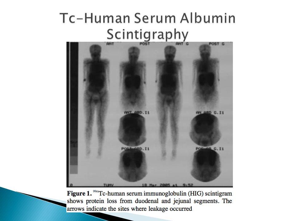Tc-Human Serum Albumin Scintigraphy