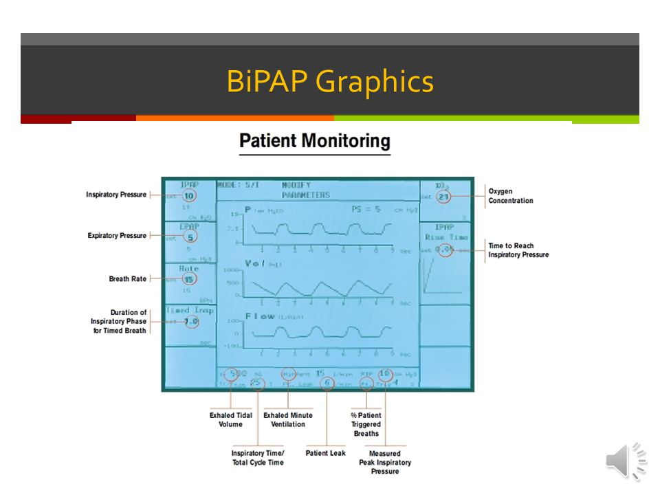 BiPAP Graphics