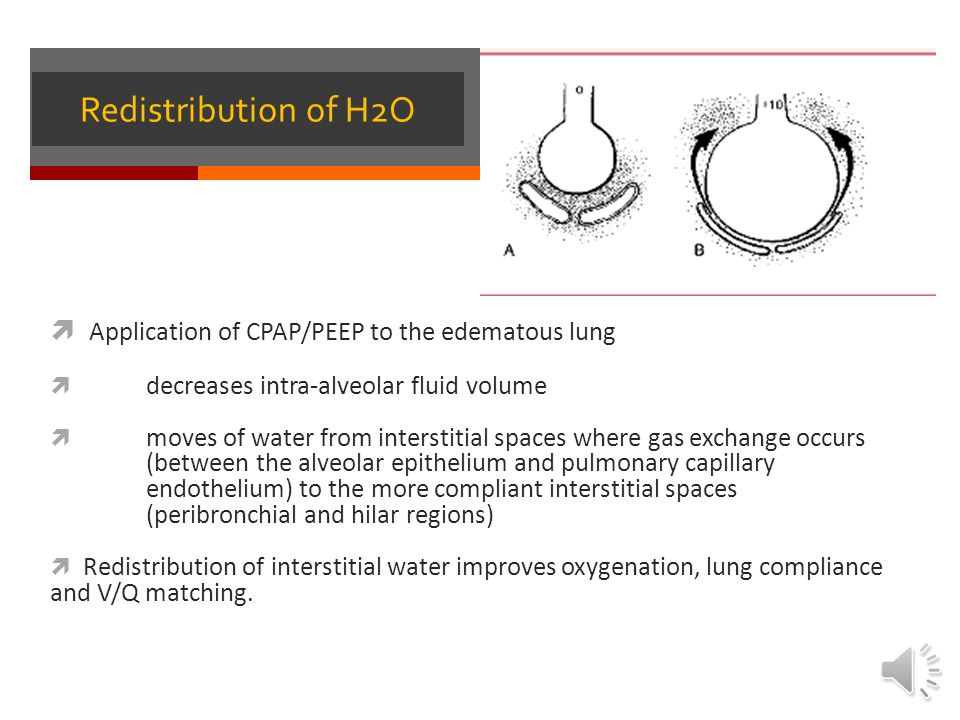 Redistribution of H2O Application of CPAP/PEEP to the edematous lung