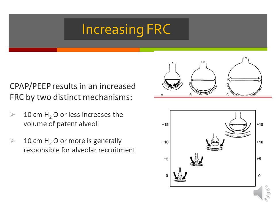 Increasing FRC CPAP/PEEP results in an increased FRC by two distinct mechanisms: 10 cm H2 O or less increases the volume of patent alveoli.