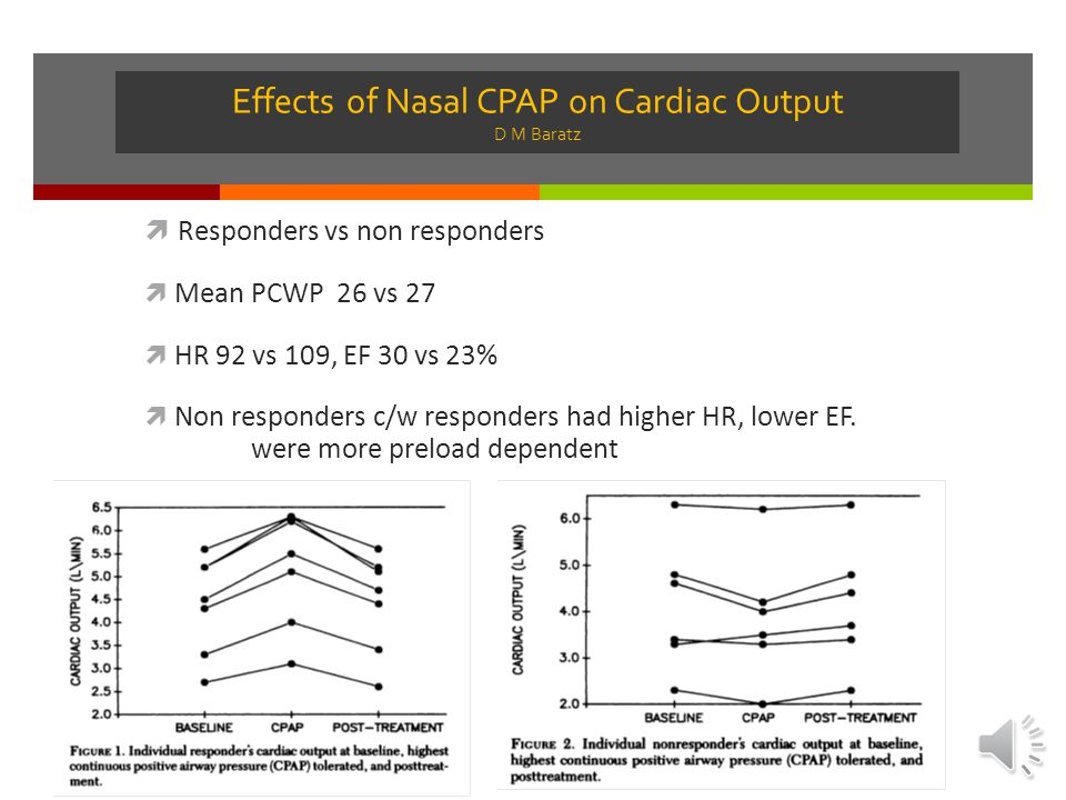 Effects of Nasal CPAP on Cardiac Output D M Baratz