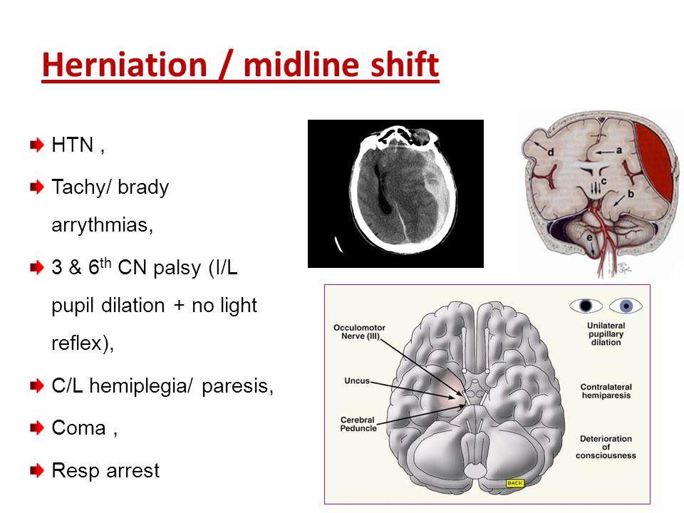 Herniation / midline shift