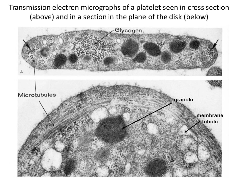 Transmission electron micrographs of a platelet seen in cross section (above) and in a section in the plane of the disk (below)