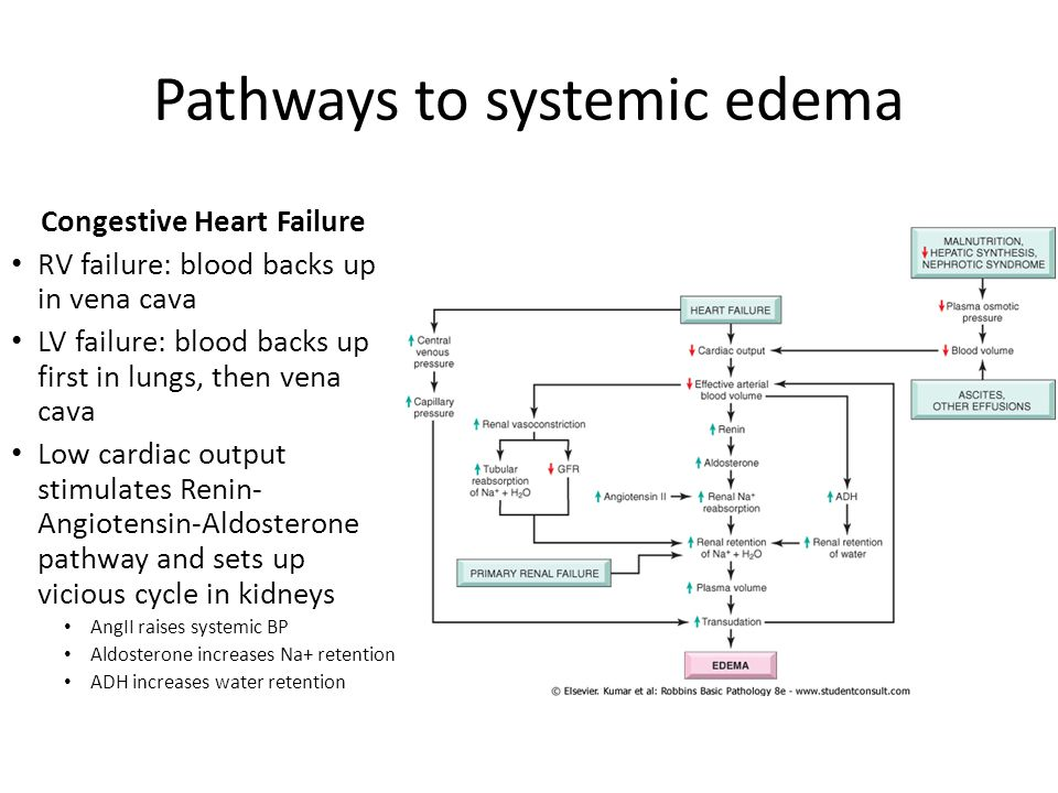 Pathways to systemic edema