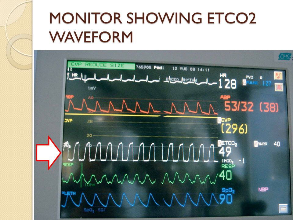 MONITOR SHOWING ETCO2 WAVEFORM