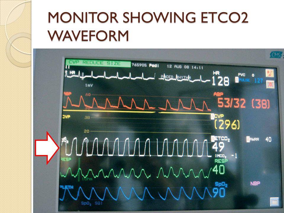 MONITOR SHOWING ETCO2 WAVEFORM