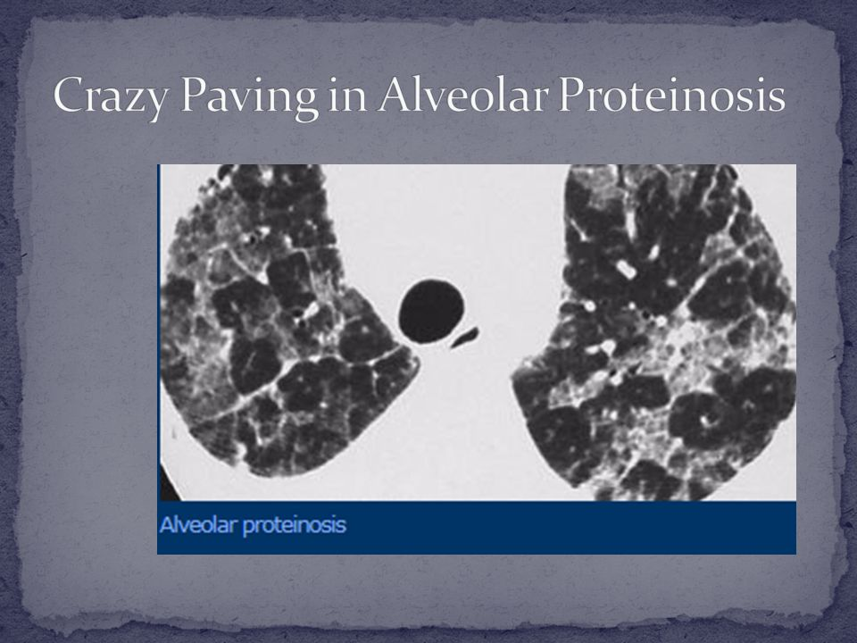 Crazy Paving in Alveolar Proteinosis