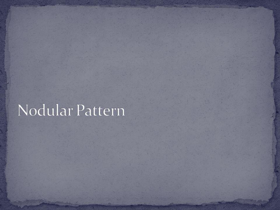 Nodular Pattern