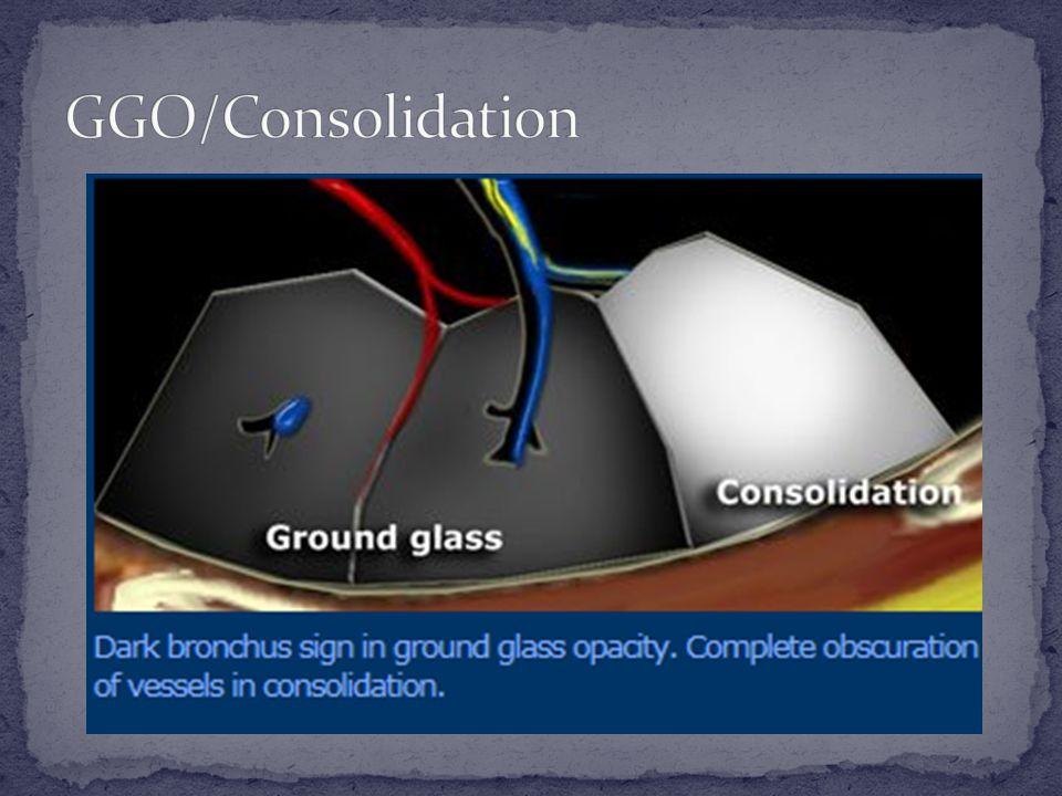 GGO/Consolidation