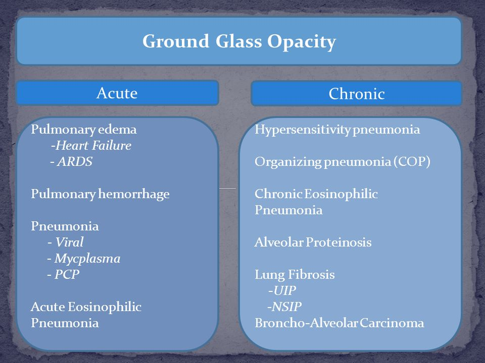 Ground Glass Opacity Acute Chronic Pulmonary edema -Heart Failure