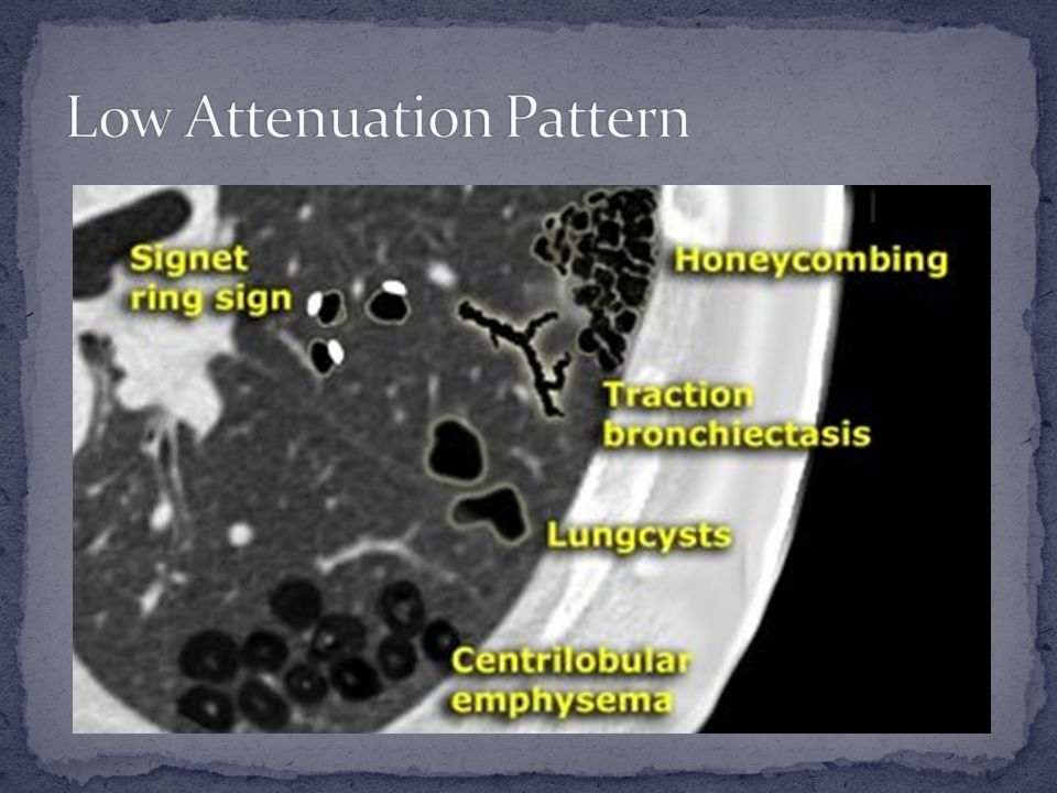 Low Attenuation Pattern