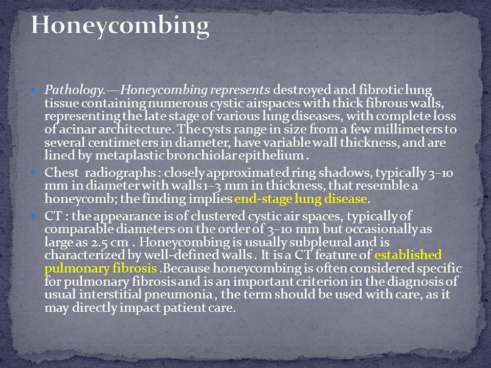 Honeycombing