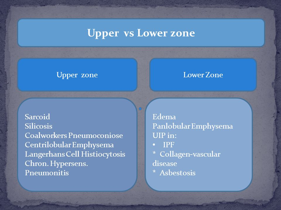 Upper vs Lower zone Upper zone Lower Zone Sarcoid Silicosis