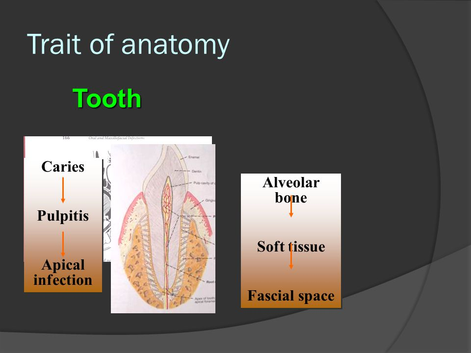 Trait of anatomy Tooth Caries Alveolar bone Pulpitis Apical infection