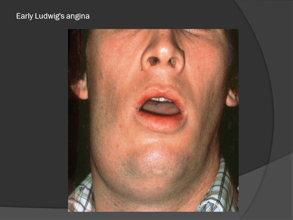 Early Ludwig s angina