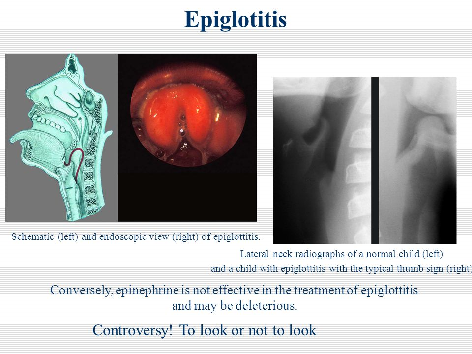 Epiglotitis Controversy! To look or not to look